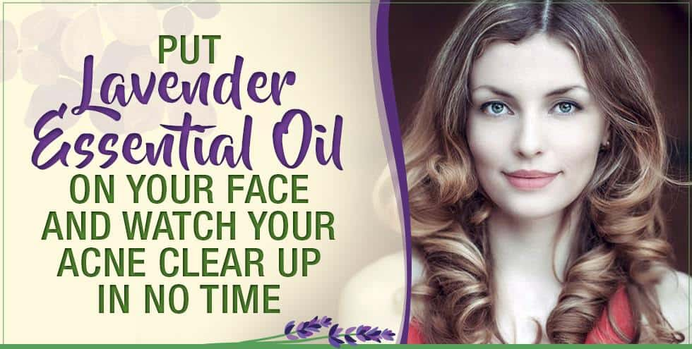 Put Lavender Essential Oil On Your Face And Watch Your Acne