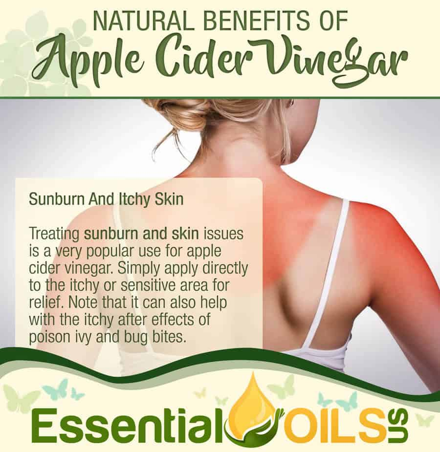 Apple Cider Vinegar Benefits - Sunburn And Itchy Skin