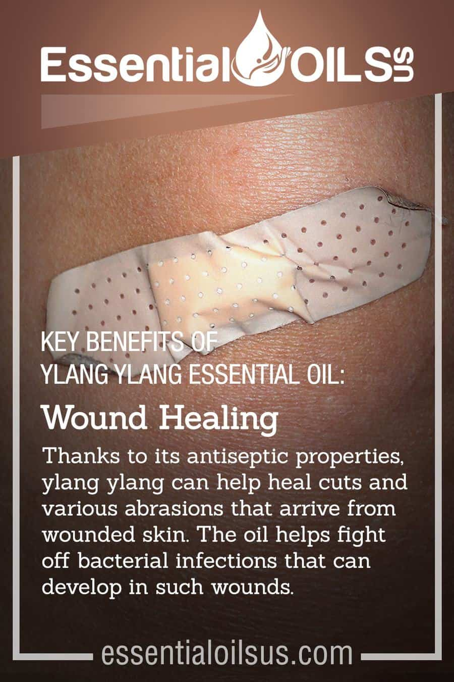 Ylang Ylang Blend For Wound Healing